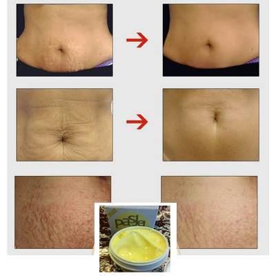 B13 12X Botcho Cream in Westonaria[+27738498722]Breast Hips and Bums Enlargement cream in Westonaria picture