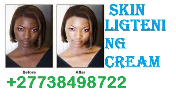Botcho cream and yodi pills[【+27738498722】]Hips BUMS Enlargement CREAM in Potchefstroom picture