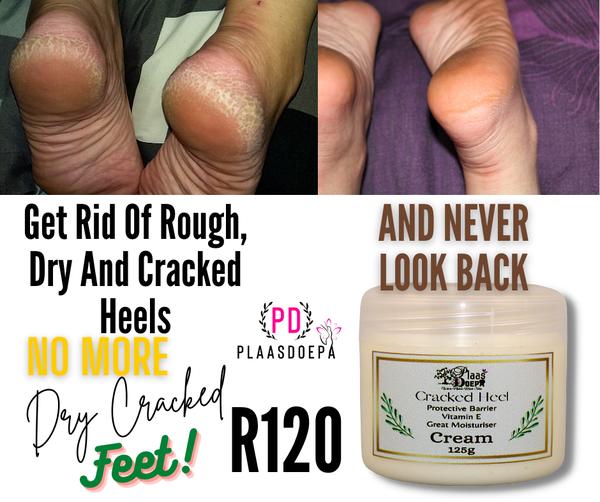 Cracked heel cream picture