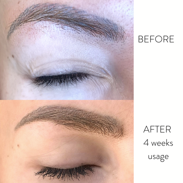 Standard beauty lash and brow growth serum with brush picture