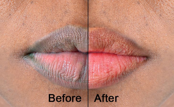 GUIDE TO LIP LIGHTENING picture