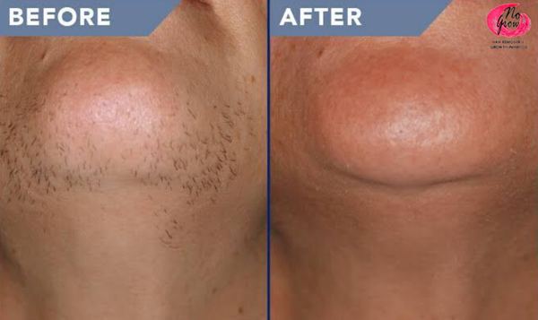 No grow male beard remover & growth inhibitor 90ml picture