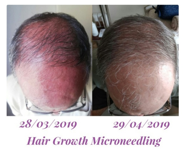 Microneedling - Hair Growth picture