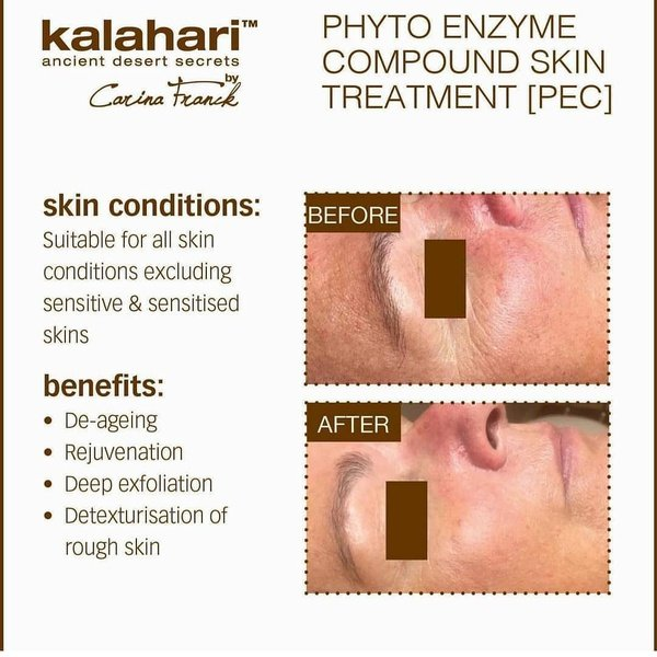 Kalahari Phyto Enzyme Skin Treatment picture