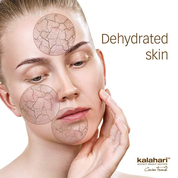 Dehydrated Skin and how to test whether the skin is dehydrated. picture