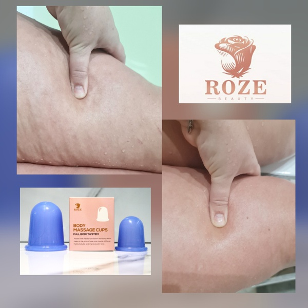 Roze body massage cup / eye&face massage cups picture