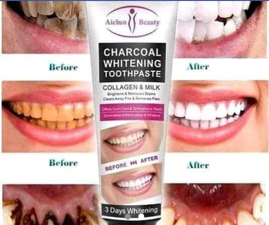 Charcoal whitening toothpaste picture